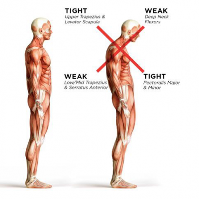 Why posture can cause shoulder pain