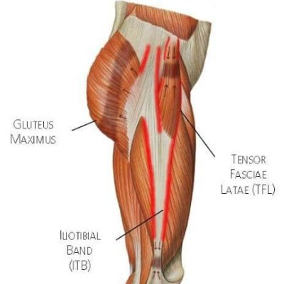 Common Running Injuries – Iliotibial Band Syndrome (ITBS)